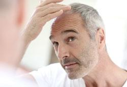 Пересадка волос – процедура против облысения