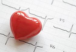 Как снизить высокое артериальное давление?