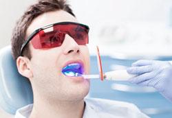 В чём преимущества лазерного отбеливания зубов?