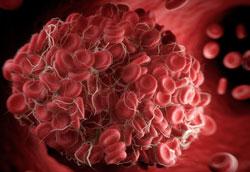 Что такое тромбофилия и чем она опасна?